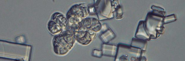 dr. Janja Zajc: Skrivno življenje halofilnih gliv