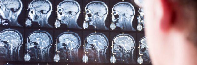 Posledice koronavirusnih obolenj na možganih? Zdravniki zelo zaskrbljeni.