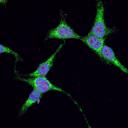 Identificirali proteinske interakcije povezane z nevrodegenerativnimi  boleznimi